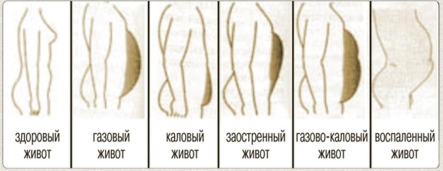 http://s8.uploads.ru/hrY0C.jpg
