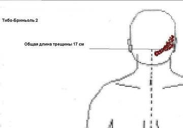 http://s8.uploads.ru/t/5AdSb.jpg