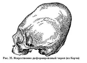 http://s8.uploads.ru/t/QKTL1.jpg