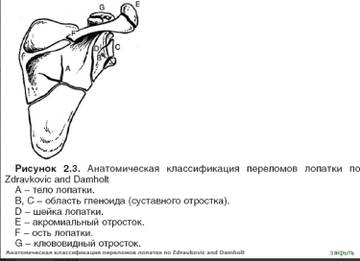 http://s8.uploads.ru/t/Tof8W.jpg