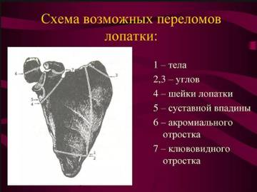 http://s8.uploads.ru/t/YLbmH.jpg