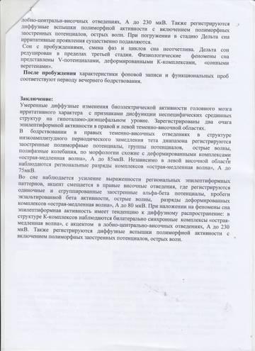 http://s8.uploads.ru/t/KcmGR.jpg