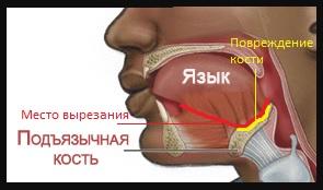 http://s8.uploads.ru/t/gMYrG.jpg